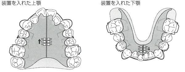 入れ歯にネジのついた装置